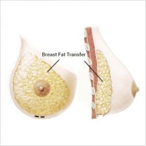 Breast-Fat-Transfer